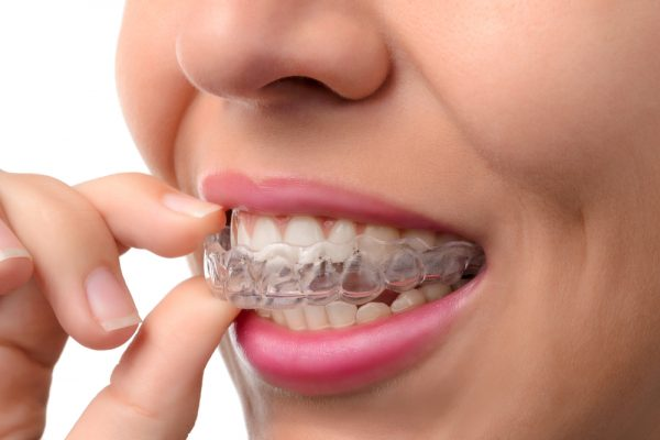 How to Eat with Invisalign